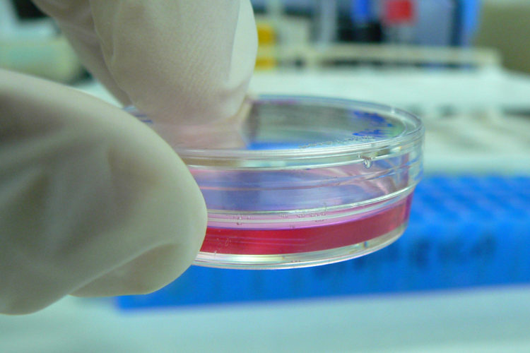 In vitro testing involves testing by using human cells in a petri dish.